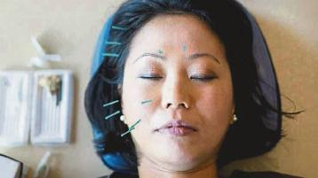 OTHER SIDE OF THE COIN: Treating headaches with acupuncture