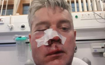 Sport Minister to discuss Offaly referee attack with FAI